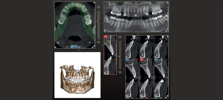 TAC Dentale Cone-Beam
