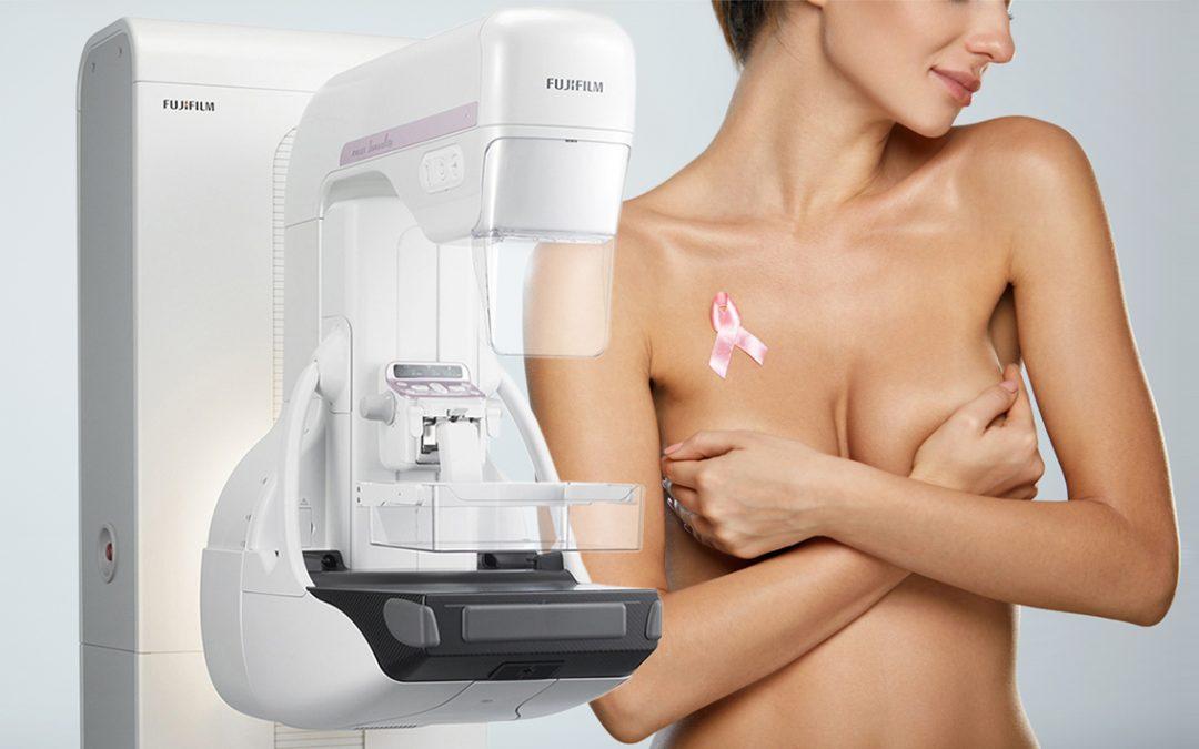 Mammografia con Tomosintesi: la prevenzione senologica d'eccellenza