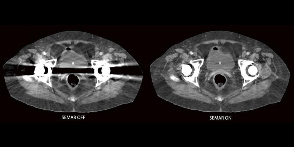 Esami diagnostici in pazienti con mezzi di osteosintesi