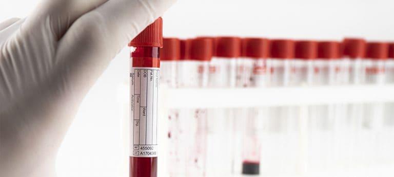 Esami sierologici tramite prelievo venoso e tamponi – Covid 19
